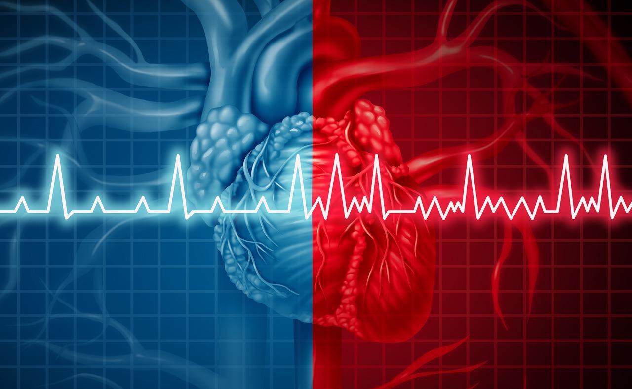 ماذا تعرف عن اضطراب نظم القلب ؟