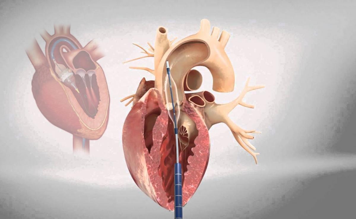 جراحة القلب
